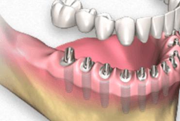 protesis dentales fijas con implantes dentales