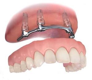 sobredentadura implantes dentales
