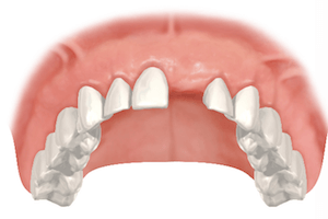 diente perdido