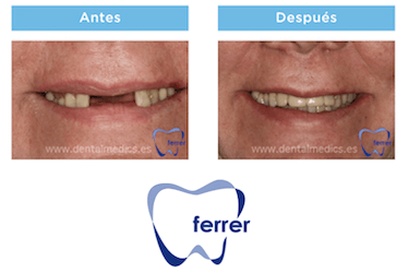 antes y despues implantes