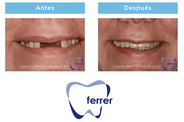 antes y despues implantes