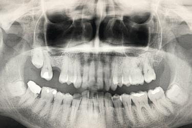 falta hueso maxilar