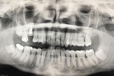 implante aumento de hueso
