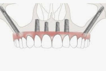 implantes dentales cigomaticos
