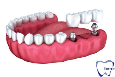 tratamientos implantes dentales