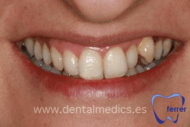 ortodoncia estetica antes