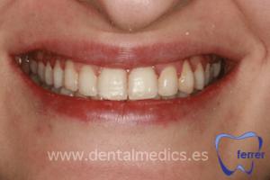 ortodoncia estetica despues
