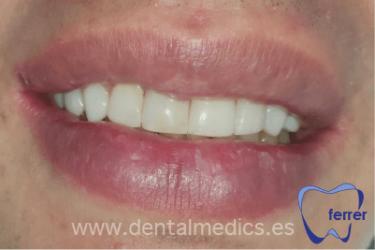 carillas dientes frontales despues