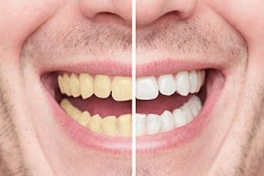 blanqueamiento dental Dr. Ferrer