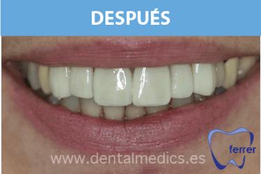 carillas dentales Dr. Ferrer