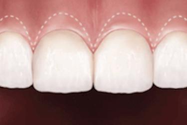 cirugia estetica dental encias