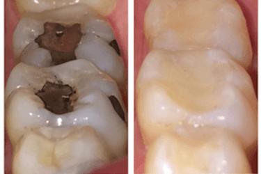 rellenos dentales esteticos