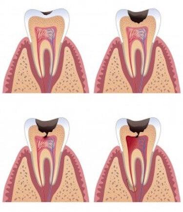 caries diente