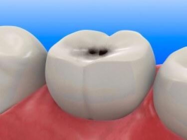 punto negro en un diente
